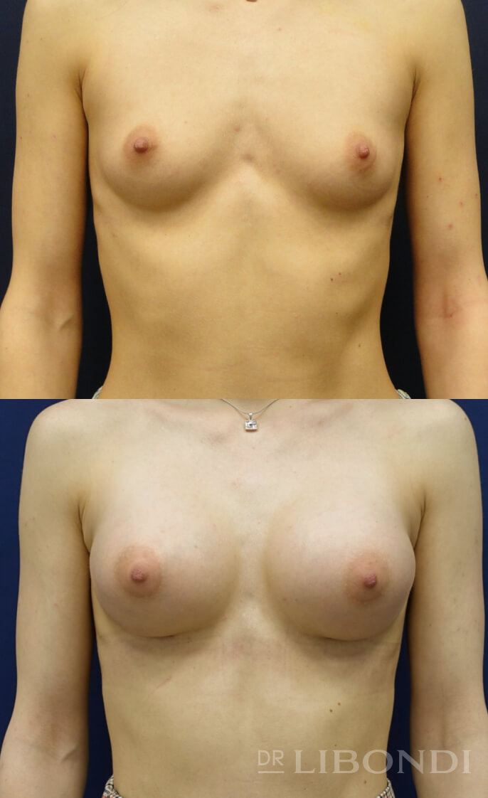 Bądź gotowa na niesamowite efekty! Powiększanie biustu - przed i po.